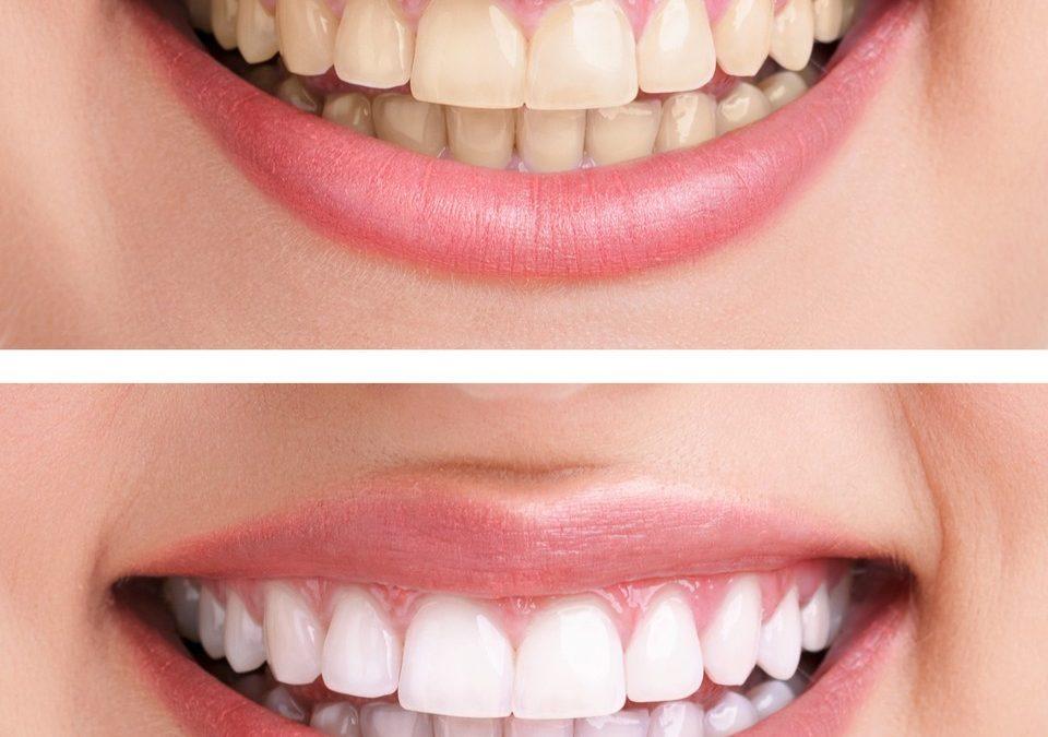 Cat dental care home remedies