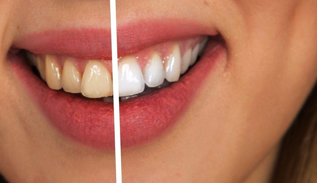 Cosmetic Dentistry in Kennesaw GA