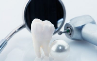 Do You Have A Cavity? We Offer Composite White Fillings