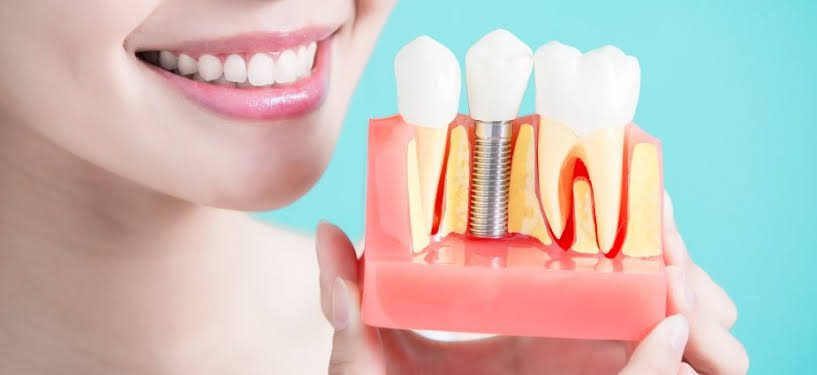 Getting a Perfect Smile With Dental Implants